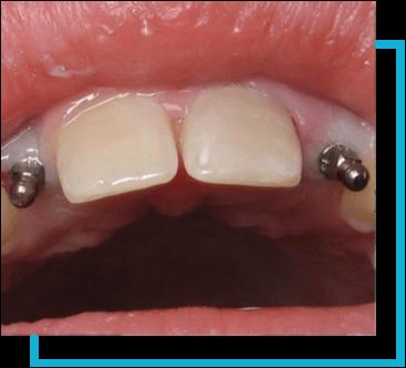 Mini Implants Hold Dentures - San Antonio Dentist | Dr ...